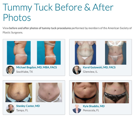 Plastic Surgeon Before and After Photos